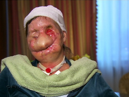 charla nash injury photos5