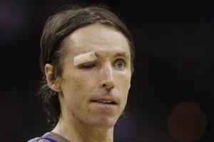 steve nash eye injury