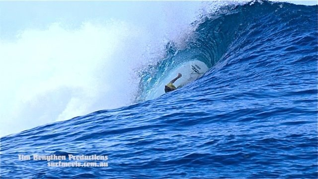 keala kennelly surfing injury picture