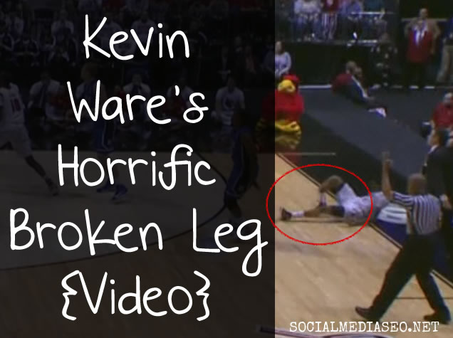 kevin-ware-broken-leg-picture