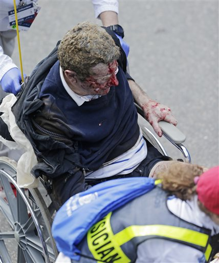 Graphic Pictures Surface After Boston Marathon Explosions